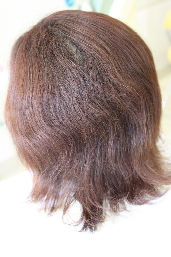 レンツ アイロン を 使用して 縮毛矯正